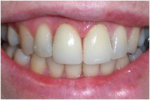 Healthy whitened two front teeth