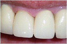 Closeup of tooth after whitening and restorative treatment