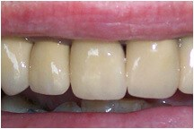 Closeup of three teeth after treatment creating beautiful smile