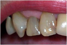 Closeup of three discolored teeth