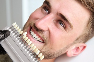 Man's smile compared to tooth color chart